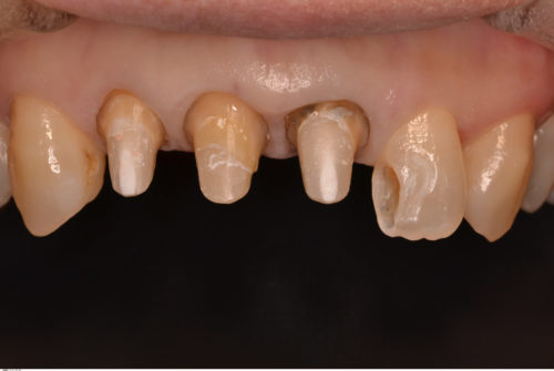 歯茎の際の審美性