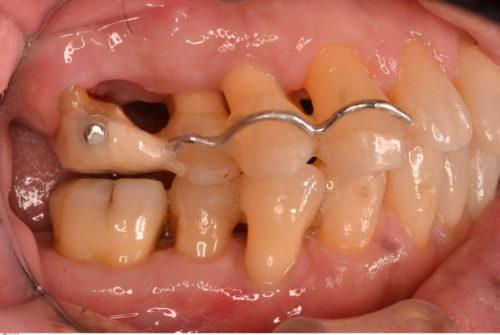 歯周病治療 エクストルージョン