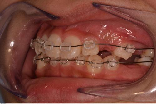 埋伏歯 矯正