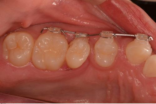 乳歯が自然に抜けない