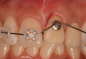 前歯の審美